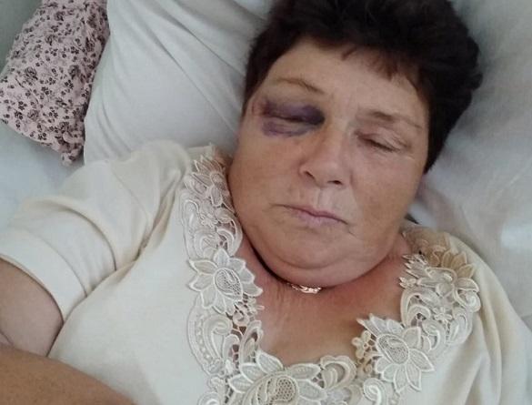 Жінку на Черкащині по-звірячому побив сусід (ФОТО)