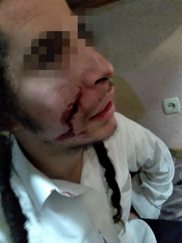 Черкаська прокуратура направила до суду обвинувальний акт щодо хулігана, який напав на неповнолітнього хасида