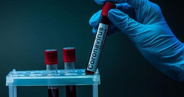 У Черкаській області померла ще одна людина, яка хворіла на коронавірус