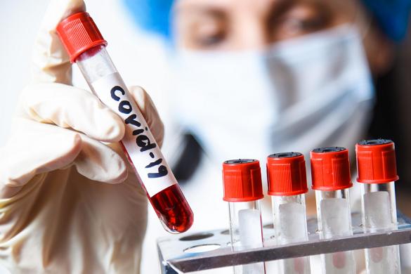 Майже 700 нових випадків COVID-19 зареєстрували на Черкащині за минулу добу