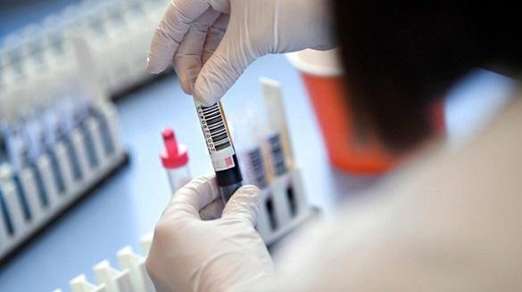 У Черкаській області зафіксували понад 300 нових випадків COVID-19