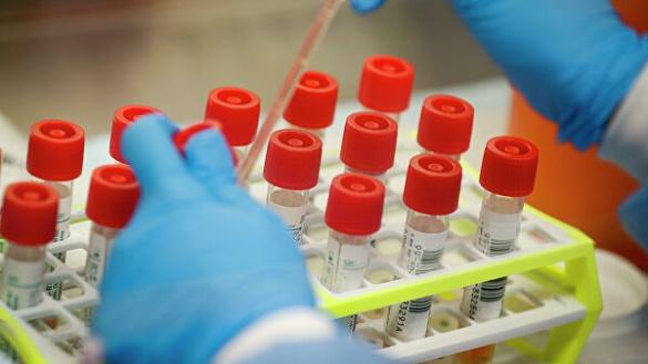 28. Кам'янка стала епіцентром хворих на коронавірус у Черкаській області