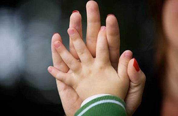 2-річний хлопчик у Черкасах потребує допомоги небайдужих (ВІДЕО)