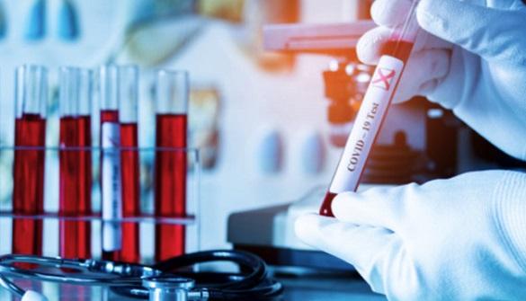 У працівниці Черкаської ОДА виявили коронавірус